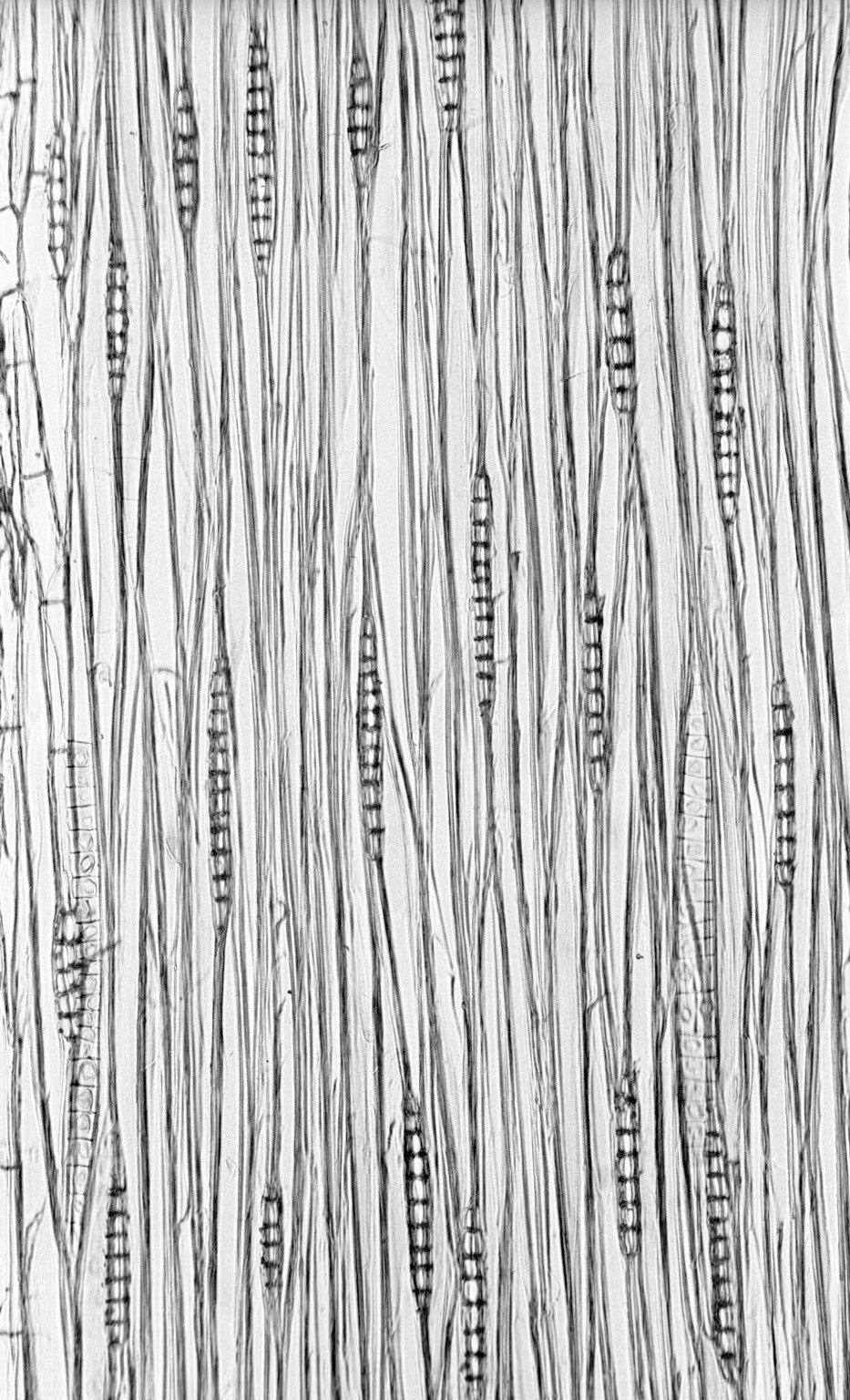 LEGUMINOSAE CAESALPINIOIDEAE Mimosoid Clade Serianthes melanesica