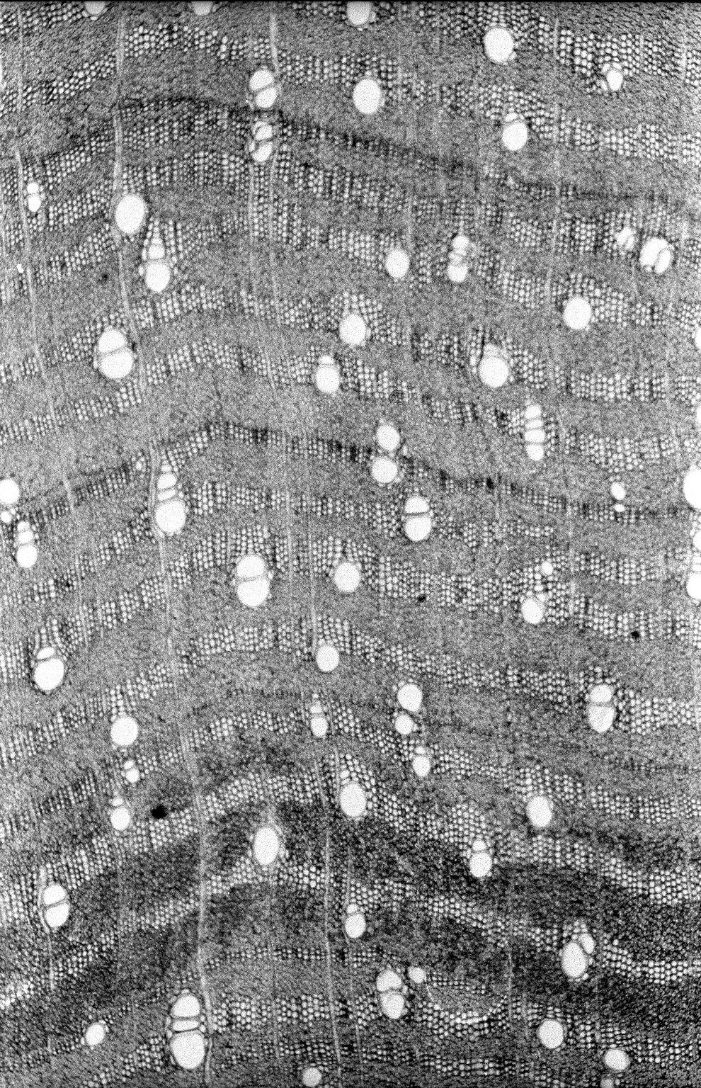 LEGUMINOSAE CAESALPINIOIDEAE Mimosoid Clade Calliandra coriacea