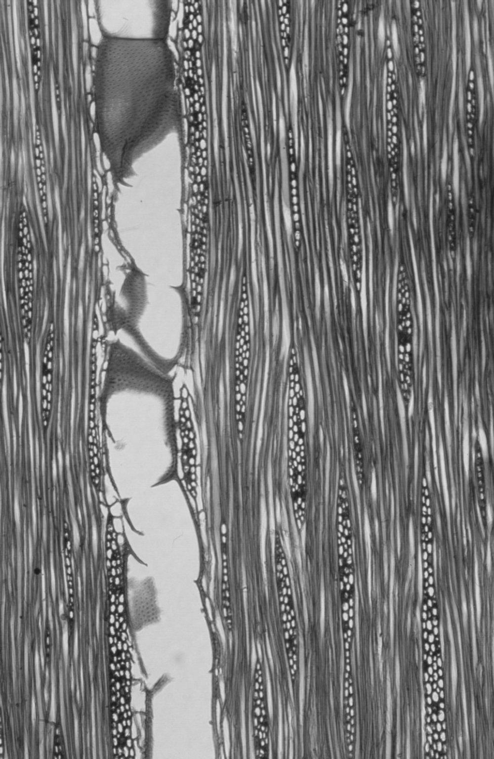 LEGUMINOSAE CAESALPINIOIDEAE Mimosoid Clade Acacia decurrens