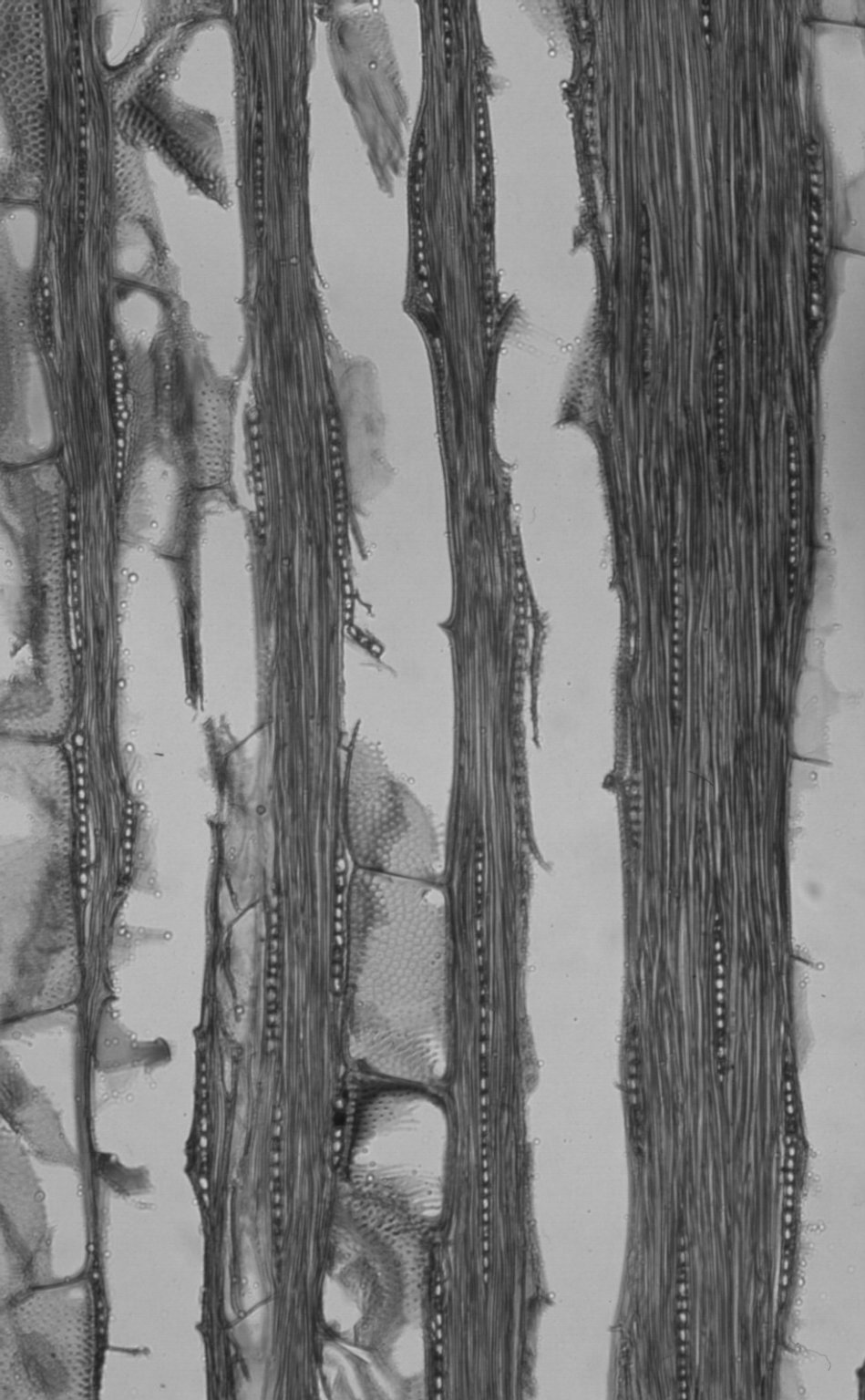 LEGUMINOSAE CAESALPINIOIDEAE Mimosoid Clade Acacia doratoxylon
