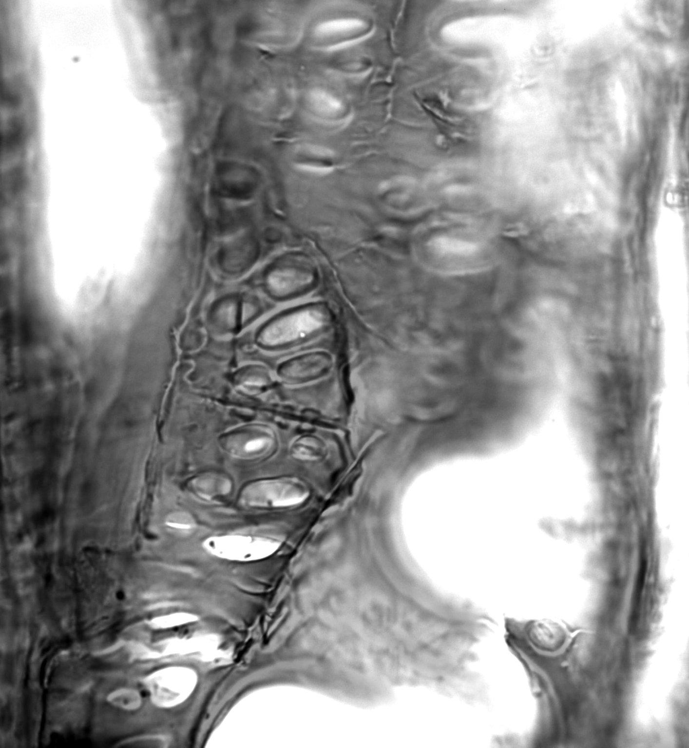 LAURACEAE Potameia crassifolia